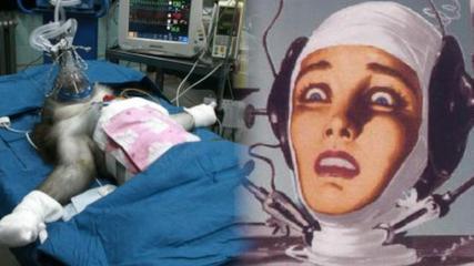 Transplantul de cap –  posibil în câțiva ani?