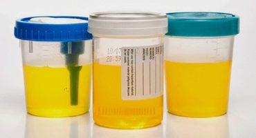 Ce spune culoarea urinei despre sănătatea ta