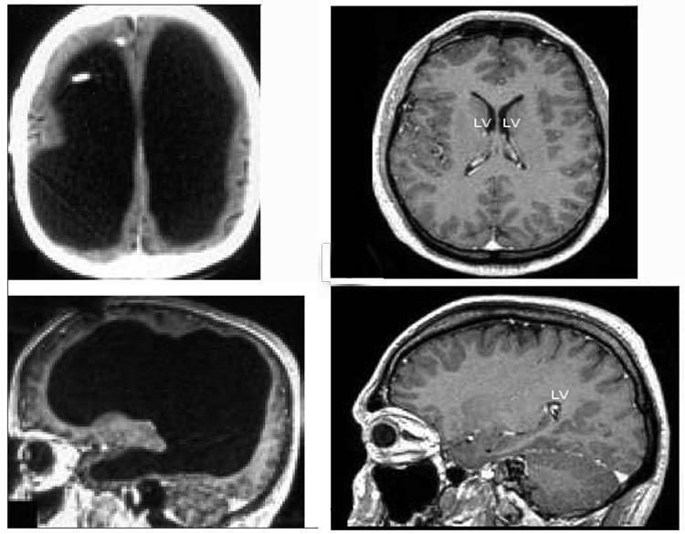 Omul care trăieste fără 75% din creier