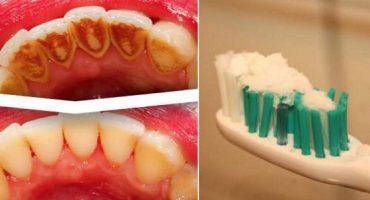 Cum îți poți albi dinții fără sa te duci la dentist