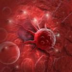 Stresul cronic răspândește cancerul. Ce au descoperit cercetătorii
