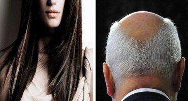 De ce femeile nu (prea) chelesc