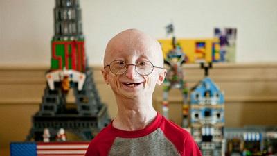 progeriaa7842