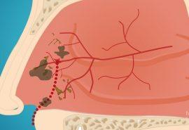 De ce este periculos pentru sănătate să înghiți mucozitatea nazală