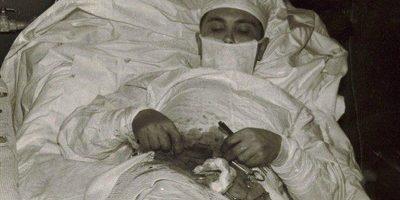 Povestea doctorului rus care s-a operat singur