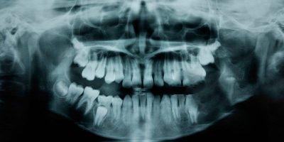 Cercetătorii au descoperit un medicament care regenerează dinții