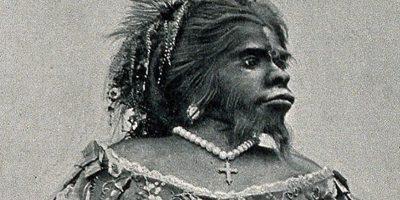 """Anomalie genetică rară - povestea Juliei Pastrana, """"femeia urangutan"""""""