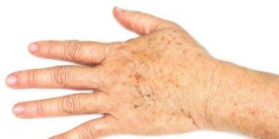 De ce persoanele bătrâne au pete pe mâini și pe față?