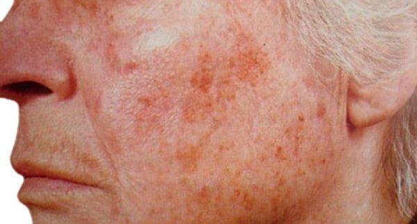 De ce apar papiloamele cutanate, aceste excrescențe ale pielii? - Doctorul Zilei