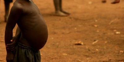 De ce copiii săraci din Africa au burțile atât de mari?