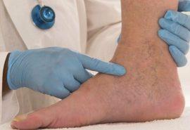 Cheag de sânge în picior: nu ratați primele simptome