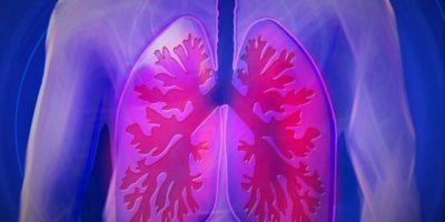 Pneumonia poate exista fără tuse. Cum o recunoști