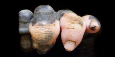 Mâna depigmentată a unei gorile ne arată cât de asemănători suntem