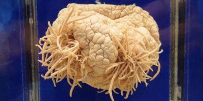 Amiba mâncătoare de creier - parazitul care se hrănește cu materia cenușie