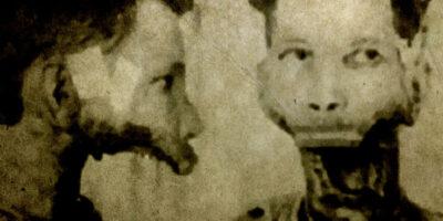 Eben Byers, bărbatul care a băut apă radioactivă până când i-a căzut falca