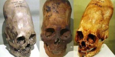 Misterul craniilor alungite din Peru a fost rezolvat. Ce au descoperit cercetătorii