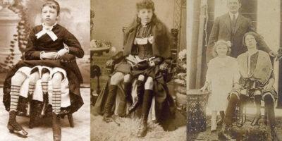 Povestea Josephinei Myrtle Corbin, femeia cu două vagine și 4 picioare care a născut 5 copii