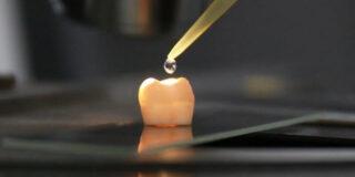 Cum se regenerează smalțul dinților fără plombe