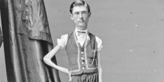 """Poveste tristă a lui Isaac Sprague, """"scheletul viu"""" care cântărea doar 19 kg"""